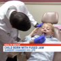 Surgery allows 5-year-old to open his mouth for the first time