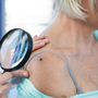 Skin Cancer by the Numbers: It's the Most Common Cancer of All
