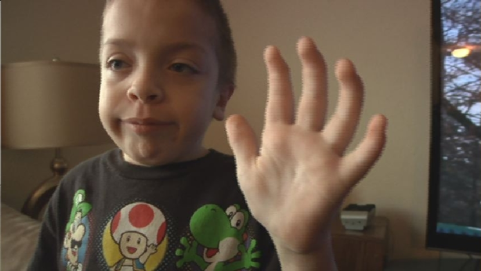 Living with Hurler Syndrome: 'All three of my boys are eventually ...